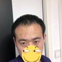 北京碧莲盛发际线种植,术后效果很惊喜