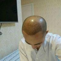 昆明莱森秃顶植发终于有头发啦