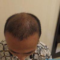 西安熙朵头顶加密种植术后分享