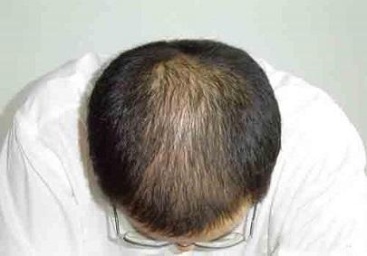 溢脂性脱发如何治疗才不会形成持久性脱发?
