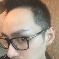 广州青逸发际线种植,发际线变好看了