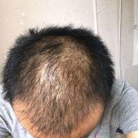 重庆艺星秃顶植发术后效果分享