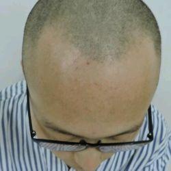 重庆碧莲盛秃顶植发术后效果分享来了