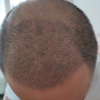 杭州新生秃顶植发术后分享
