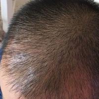广州熙朵秃顶植发术后效果分享