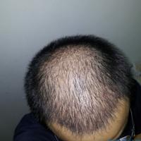 深圳鹏程秃顶植发术后分享