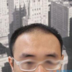 石家庄碧莲盛发际线种植+头顶加密术后效果分享