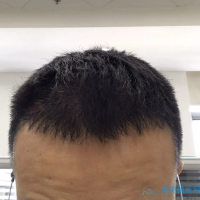 太原华美秃顶植发怎么样