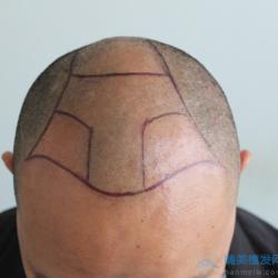 泉州碧莲盛秃顶植发术后效果简直焕然一新