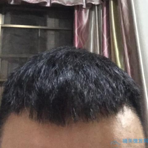 秃顶植发后