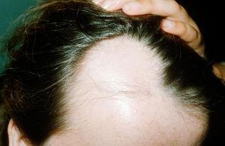 为什么男人比女人更容易脱发?如何预防?