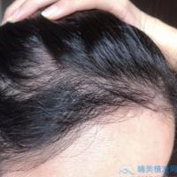 杭州艺星发际线种植越来越自然