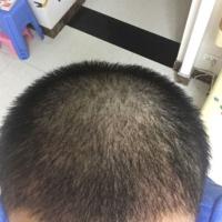 合肥曙光秃顶植发怎么样