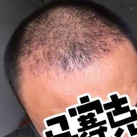 上海首尔丽格发际线种植怎么样