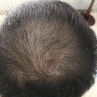 北京联合丽格头顶加密种植怎么样
