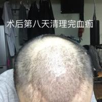 福州碧莲盛秃顶植发怎么样