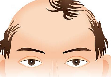 常见十大年轻男性脱发的原因