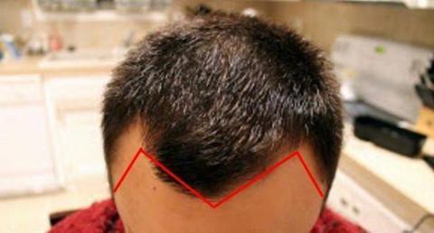 M型发际线怎么改善?这款药大家一定要记起来