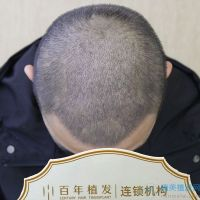 无锡百年秃顶植发术后案例分享