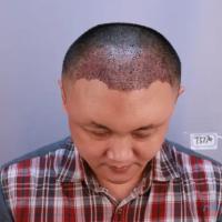 深圳富华秃顶植发,确实变年轻了很多