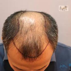 成都恒博秃顶植发效果怎么样