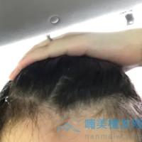 北京碧莲盛发际线种植,植发成功了