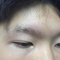 北京碧莲盛眉毛种植术后分享来了
