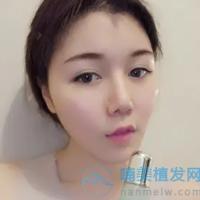 北京新生美人尖种植,达到了理想中的效果