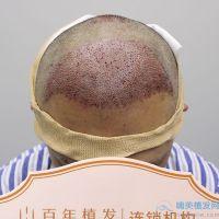 无锡百年秃顶植发术后效果分享