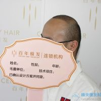 无锡百年秃顶植发术后分享