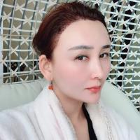 青海绣妤发际线种植术后分享