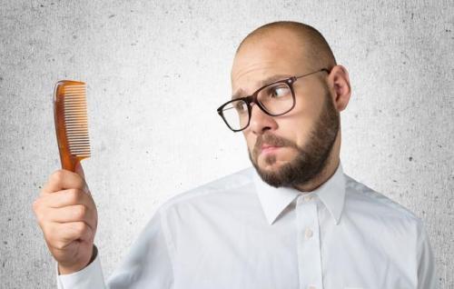 判断雄激素性脱发的5个自测方法