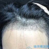 深圳碧莲盛发际线种植术后分享