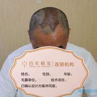 无锡百年头顶加密种植头发长势不错