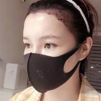 北京碧莲盛发际线种植植发效果怎么样呀