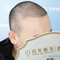 常州百年秃顶植发术后分享来了