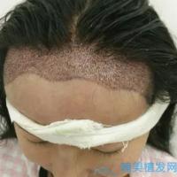 贵阳丽都发际线种植头发越长越好啦