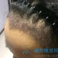 上海首尔丽格美人尖种植变年轻了呢