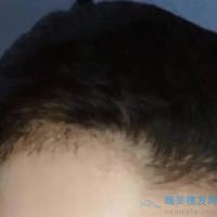 北京大麦美人尖种植效果特别好