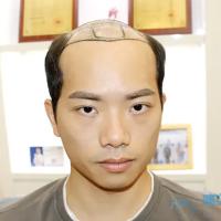 北京新生秃顶植发让我变帅了