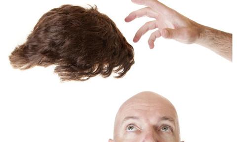 植发治疗脱发常见的七大问题
