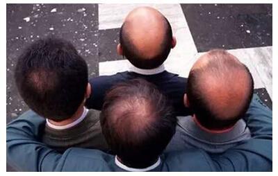 头发稀少的主要原因是什么?