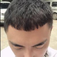 天津大麦秃顶植发成活率很高