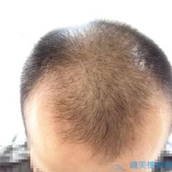 天津熙朵秃顶植发案例分享