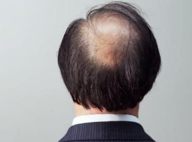 什么是脂溢性脱发?脂溢性脱发该怎么治疗?