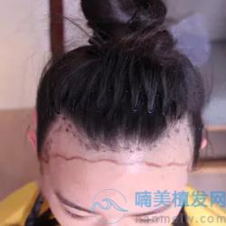 贵阳美贝尔发际线种植挺自然的