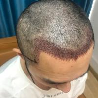 杭州薇琳发际线种植长势很不错