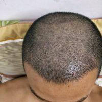 北京大麦秃顶植发效果特别棒