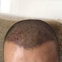 贵阳新生秃顶植发案例分享