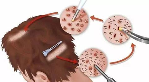 与传统植发技术相比ERT无血痂植发技术有哪些优势?